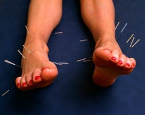 Acupunture covered by health insurance