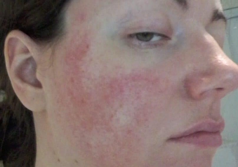 rosacea awareness months - symptoms JulieBC